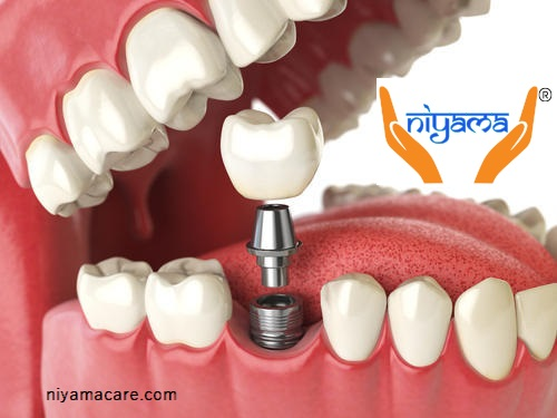 Restore your confidence with the best dental implants